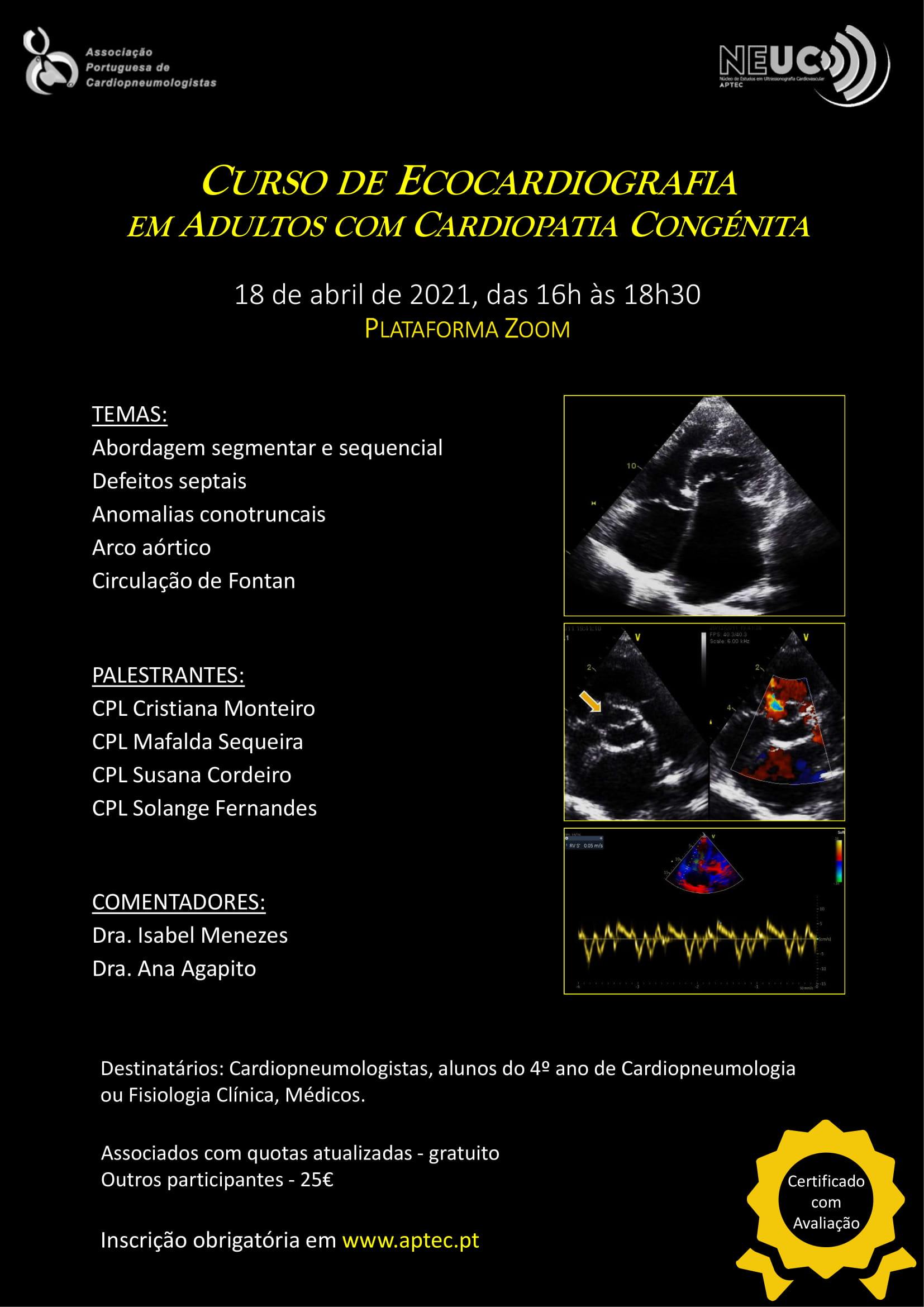 Curso de Ecocardiografia em Adultos com Cardiopatia Congénita